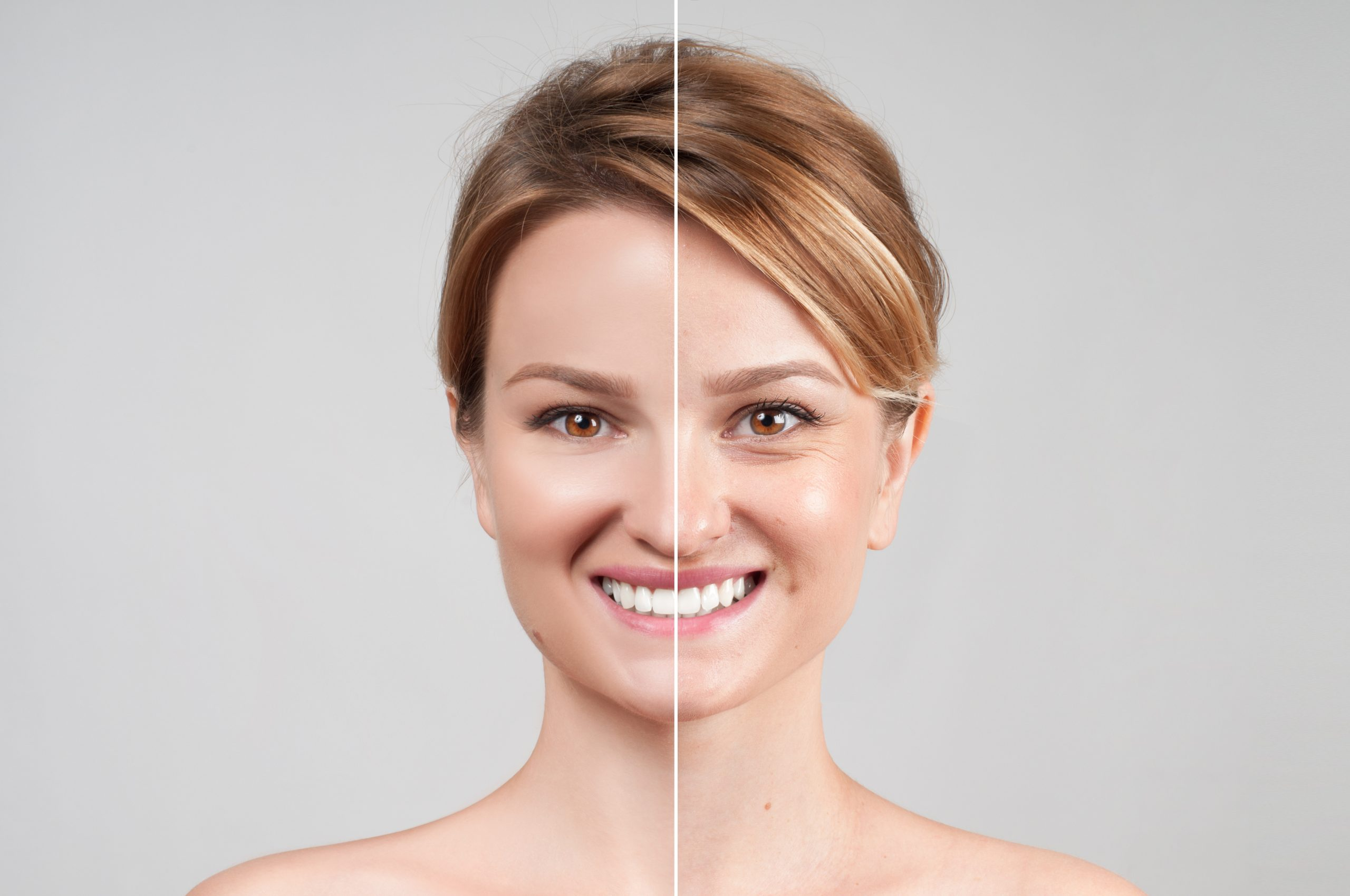 Dermatology Before and After
